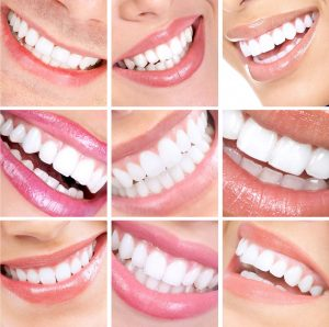 Tooth Whitening by Yokoyama Dentistry